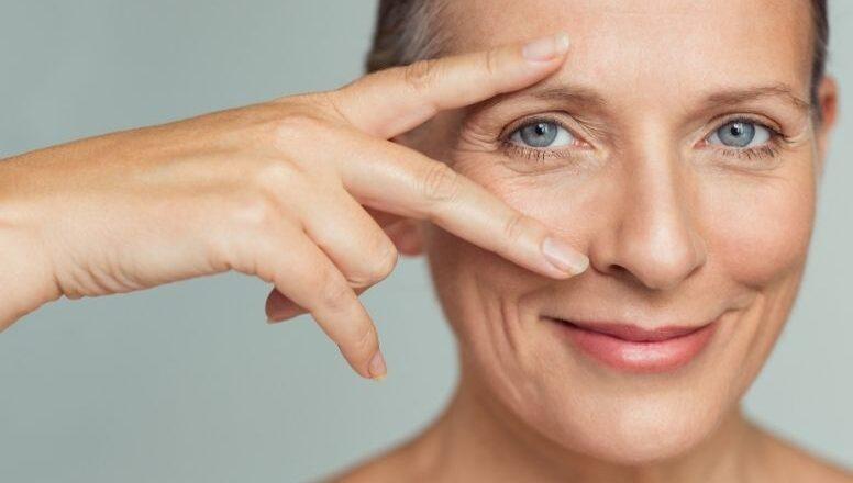Olheiras: dermatologista explica 3 tratamentos para diminuir a pigmentação
